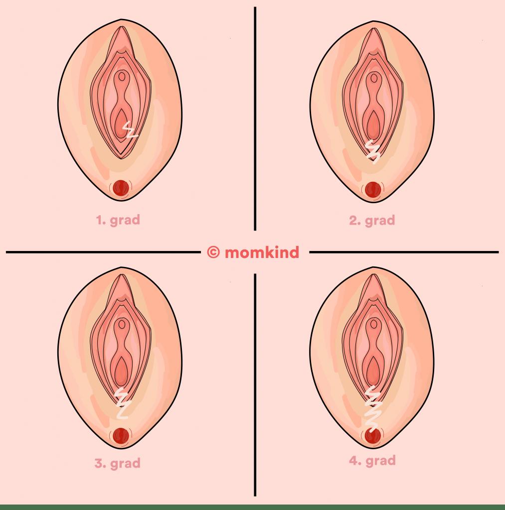 Bristninger efter fødsel de fire typer
