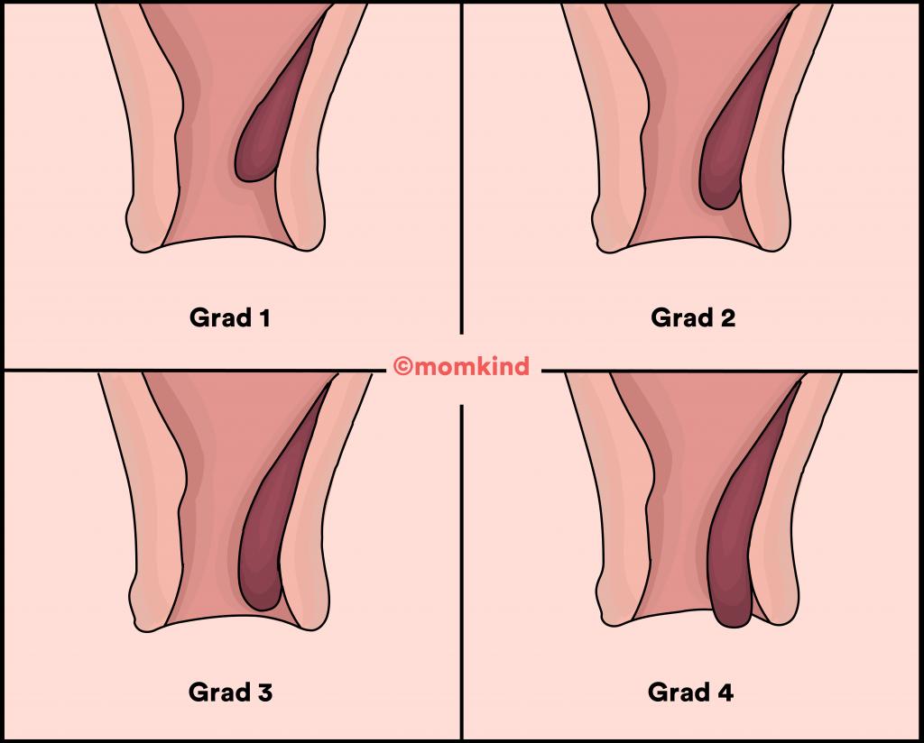 hæmorider graviditet