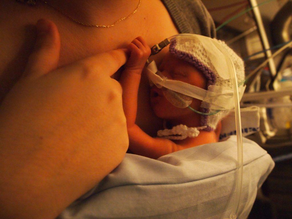 neonatal vigga