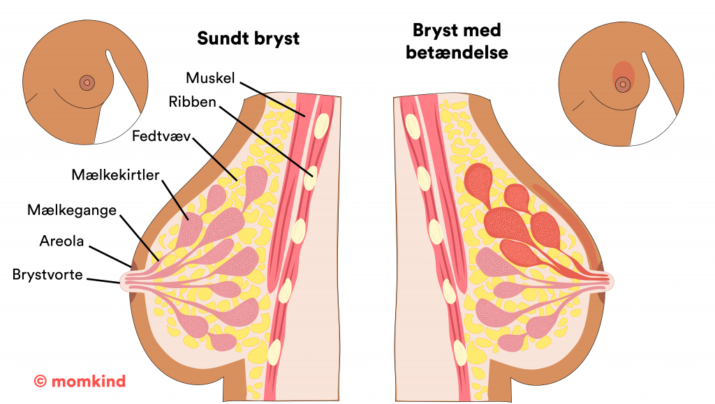 Brystbetændelse momkind illustration